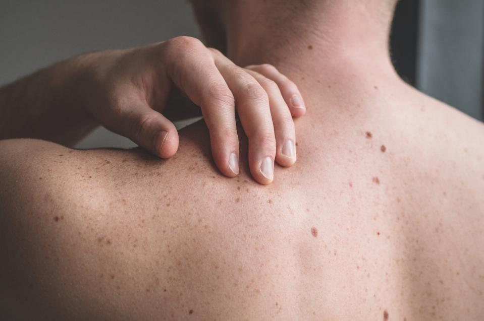 Checking benign moles. Close up detail of the bare skin on a man back with scattered moles and freckles