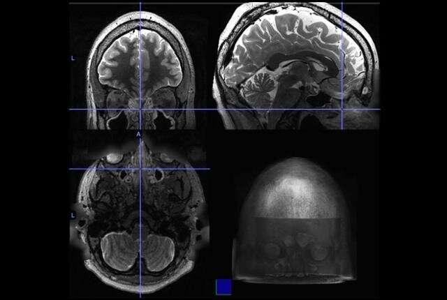 Chronic sinus inflammation appears to alter brain activity
