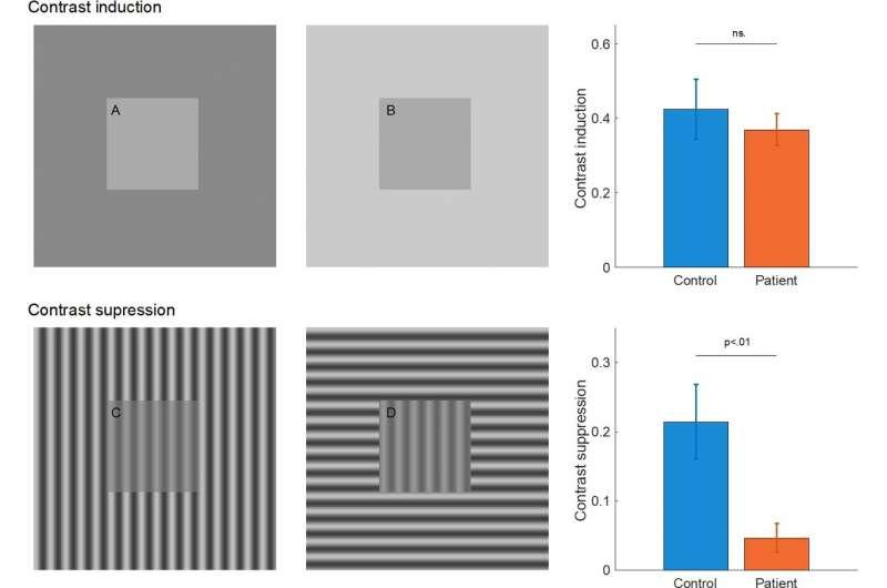 Depression affects visual perception