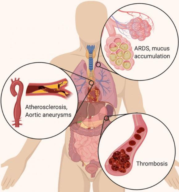 In the lungs, NETs drive the accumulation of mucus in cystic fibrosis patients' airways. NETs also drive acute respiratory distress syndrome (ARDS) after a variety of inducers, including influenza. In the vascular system, NETs drive atherosclerosis and aortic aneurysms, as well as thrombosis (particularly microthrombosis), with devastating effects on organ function. Image credit: Cold Spring Harbor Laboratory.