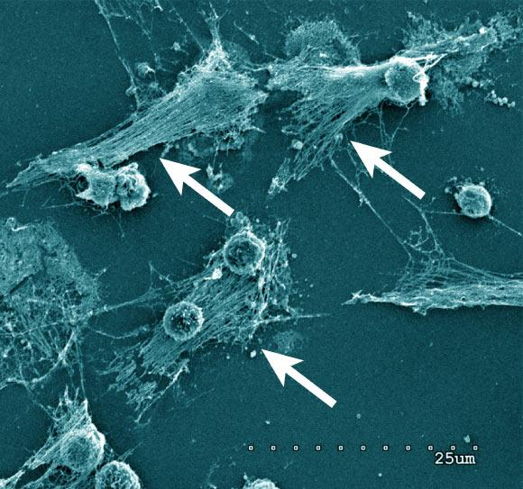 Neutrophils forming NETs in cell culture. Note the expelled DNA strings (arrows). Scanning electron microscopy of neutrophils 3 h after plating and coculturing with 4T1 breast cancer cells. Scale bar - 25 µm. Image credit: Barnes et al, doi: 10.1084/jem.20200652.