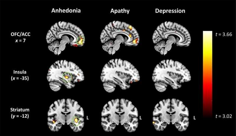 Profound loss of pleasure related to early-onset dementia